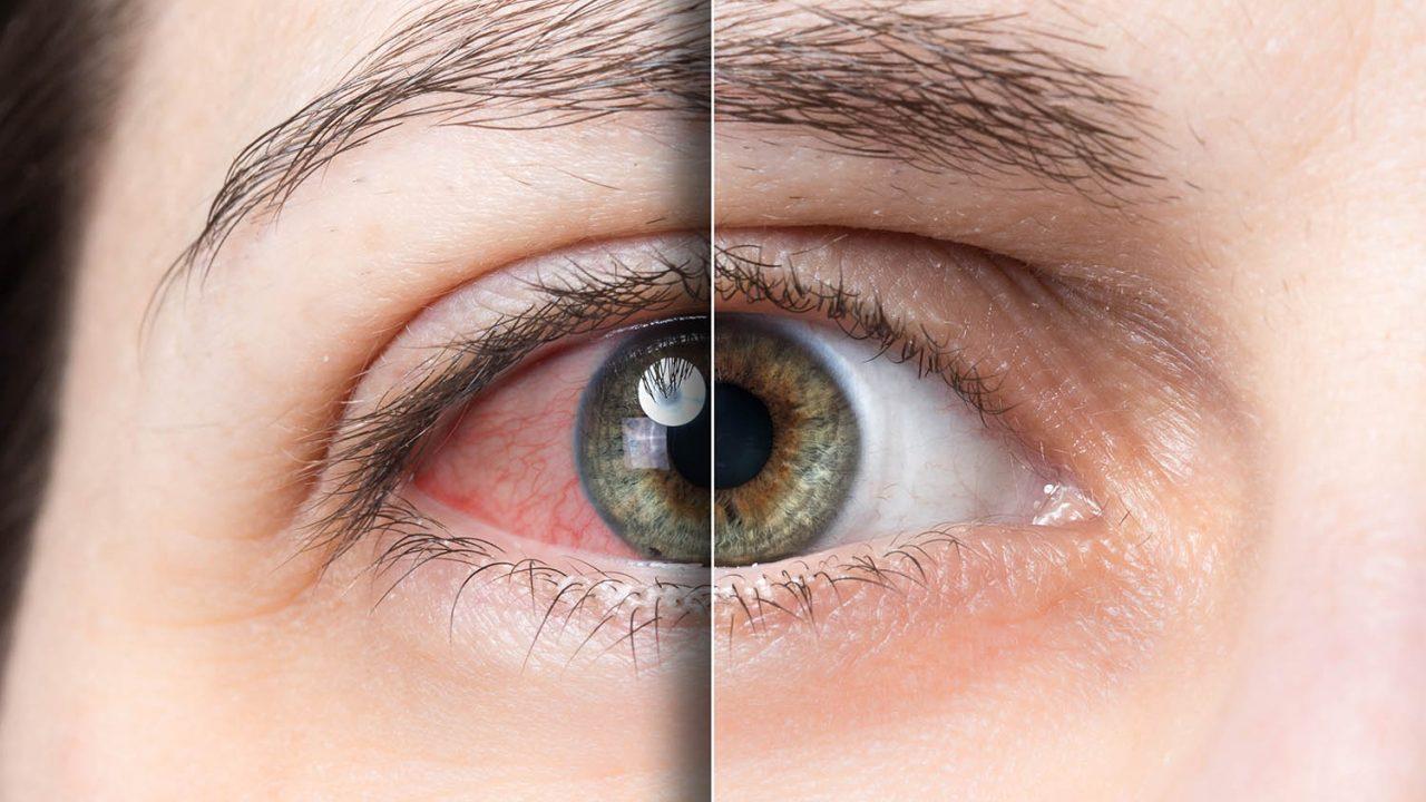 https://www.stonerchef.pl/wp-content/uploads/2020/07/czerwone-oczy-po-marihuanie-1280x720.jpg