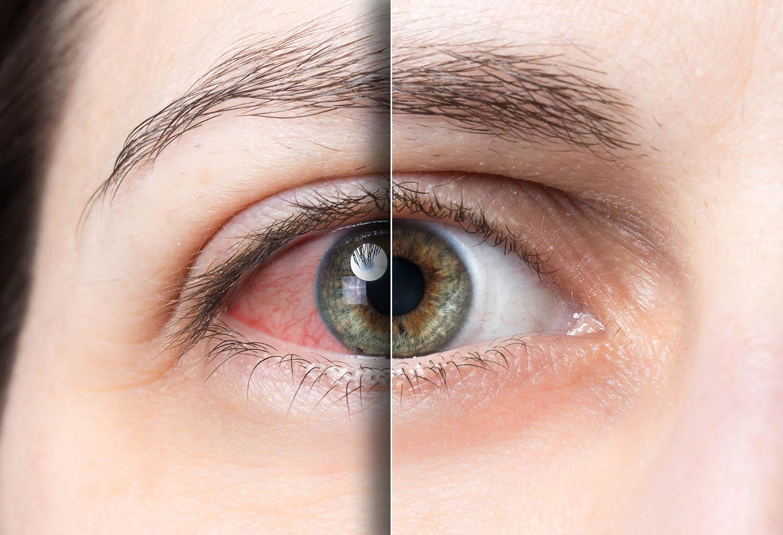 czerwone oczy po marihuanie