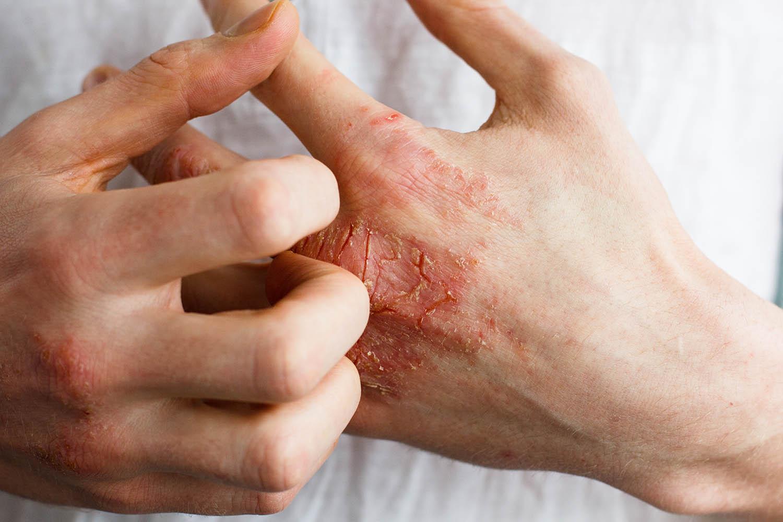 wpływ CBD na choroby skóry